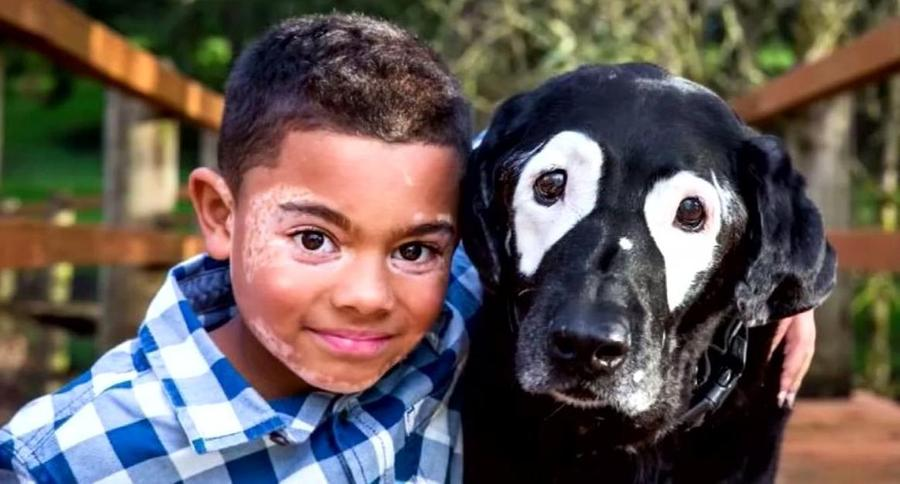 boy and dog with same skin condition